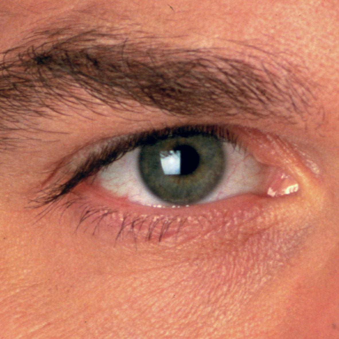 Lentilles de couleur : j'évite les irritations des lentilles couleur